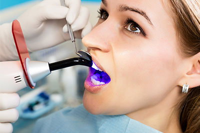dental bonding in Rocklin