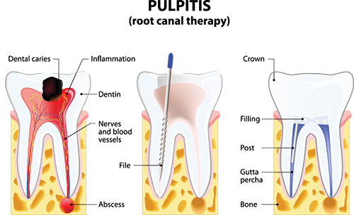 Root Canal Therapy in Rocklin