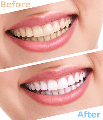 Rocklin teeth whitening