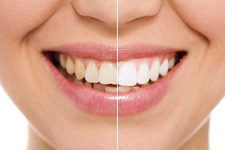 Cosmetic Dentistry in Rocklin