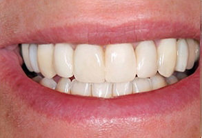 Before and After Invisalign in Rocklin