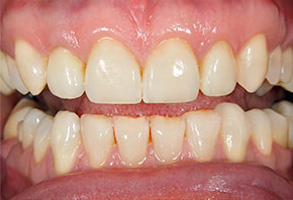 Rocklin Before and After Dental Implants