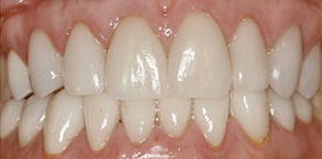 Before and After Dental Bleaching Rocklin