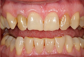 Before and After Dental Implants Rocklin